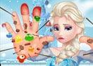 Elsa Hand Doctor