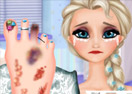 Elsa Foot Injured