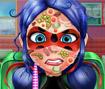 Ladybug Face Skin Surgery